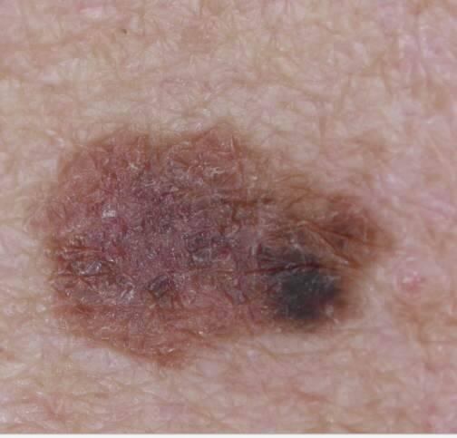 melanoma image courtesy of Dr. Jonathan Bowling